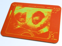 Ultraschallbild Mousepad